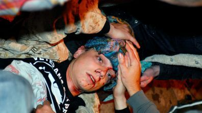 24-year-old Iraq War veteran Scott Olsen lays on the ground bleeding from a head wound after being struck by a by a projectile during an Occupy Wall Street protest in Oakland, Calif.