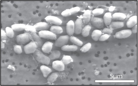 GFAJ-1 bacterium grown on arsenic